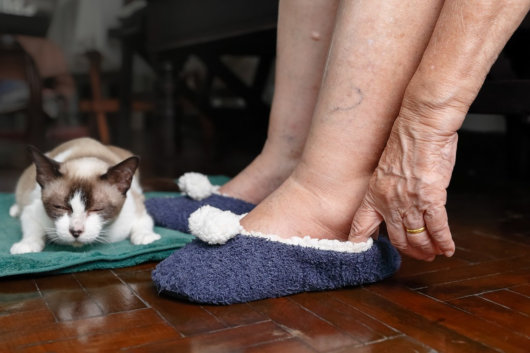 Foot Swelling: Home Remedies for Edema